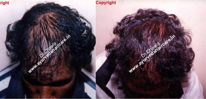ayurveda haircare