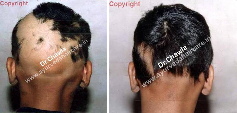 Alopecia universalis in india